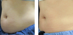 Coolsculpting Stomach Dallas TX