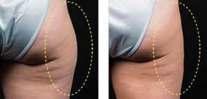 Coolsculpting Thigh Dallas Dermatology