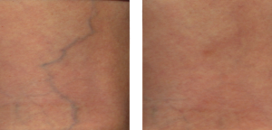 Sclerotherapy Dallas Dermatology